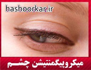 میکروپیگمنتیشن سایه چشم ، میکروپیگمنتیشن خط چشم ، میکروپیگمنتیشن چشم در تهران